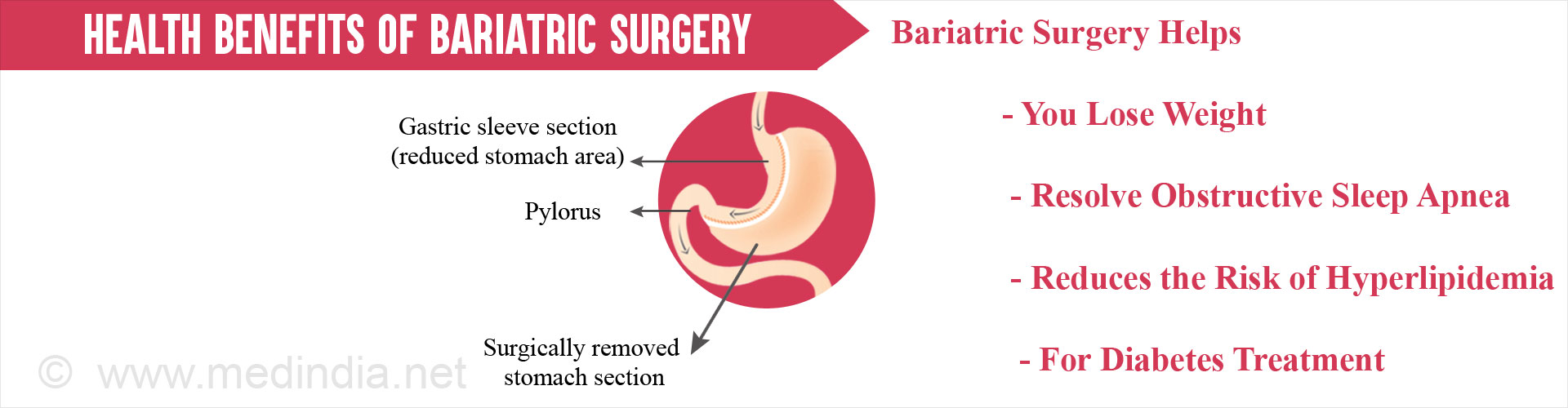 Alcohol Effects After Bariatric Surgery