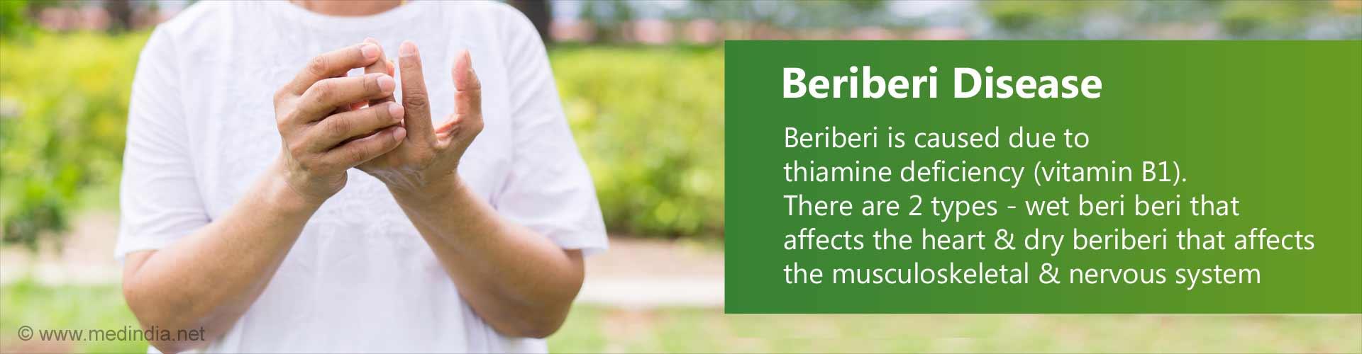 Beriberi Disease