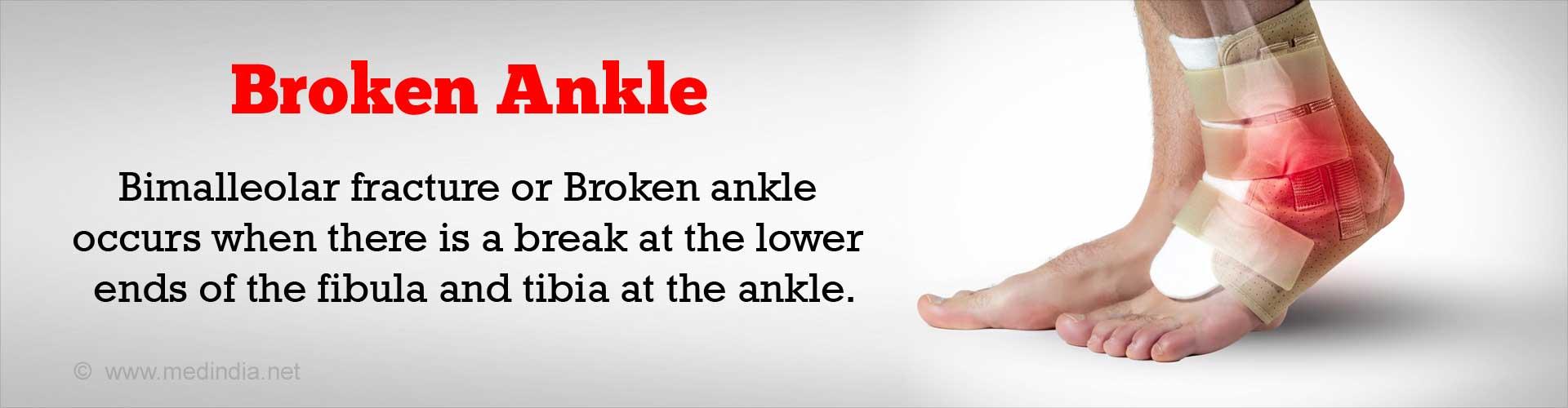 Bimalleolar Fracture / Broken Ankle