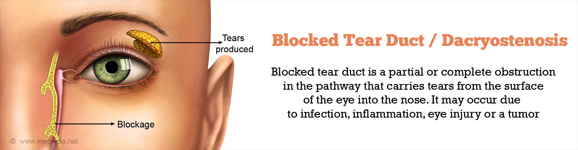 Blocked Tear Duct / Dacryostenosis