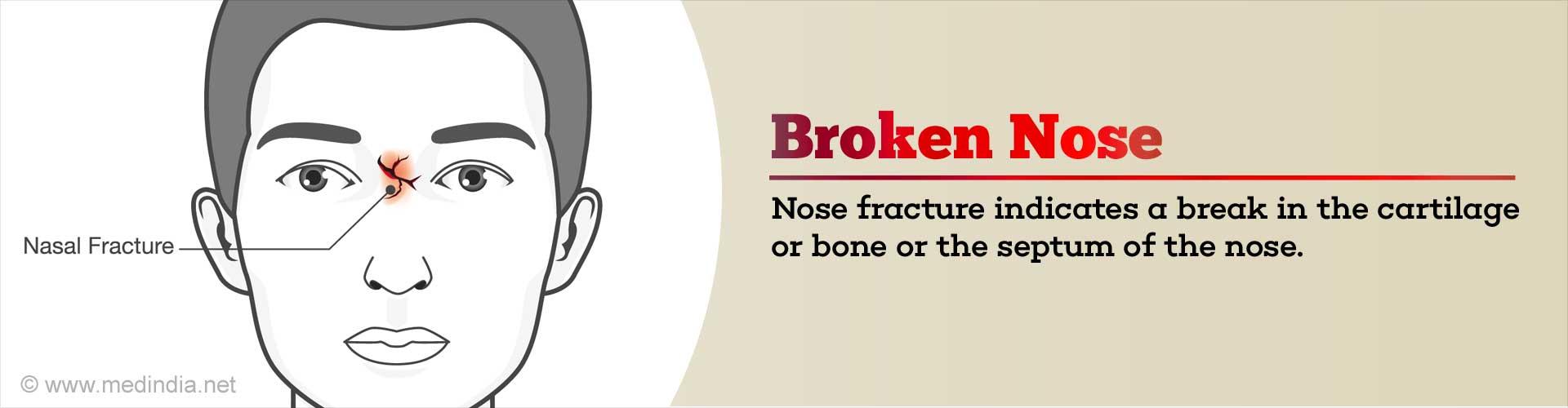 Broken Nose (Nasal Fracture)