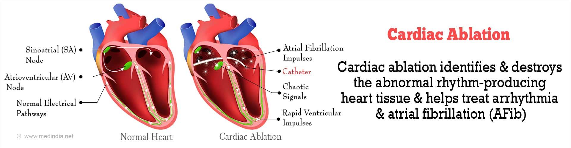 Cardiac Ablation
