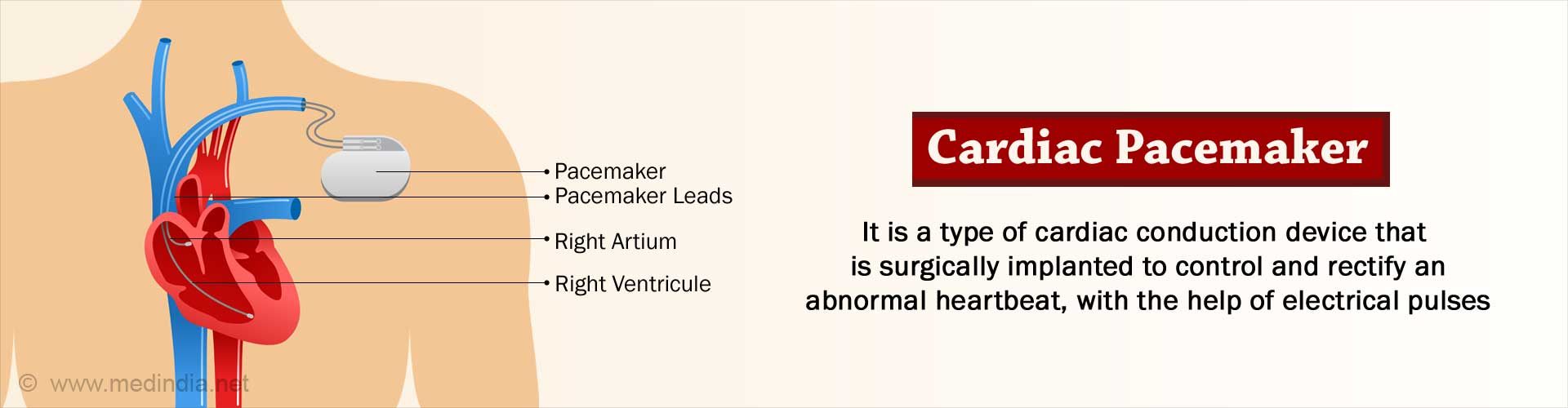 Cardiac Pacemaker for Abnormal Heart Rhythms – Types, Advantages, Risks