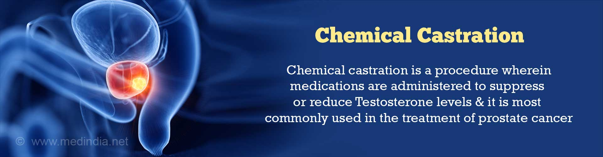 Chemical Castration