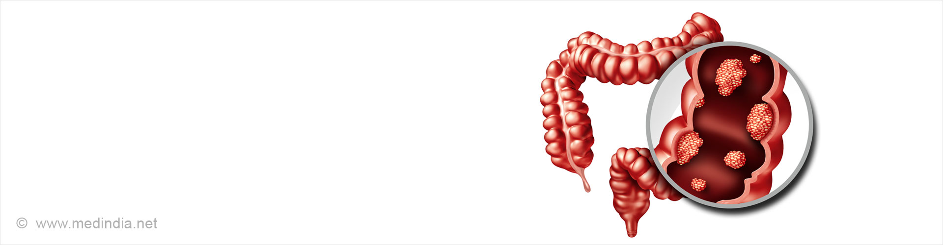 Colorectal Cancer / Colon and Rectal Cancer
