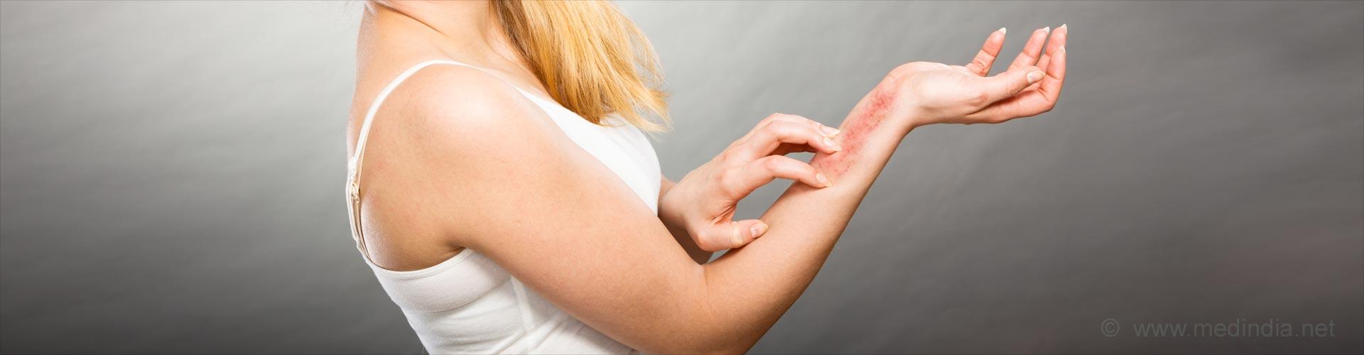 Dermatitis. Treatment, prevention, symptoms