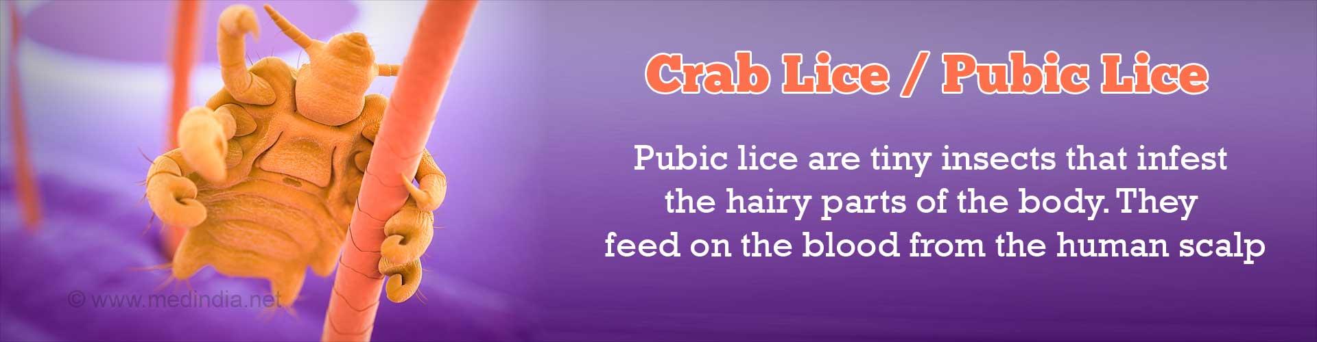 Crab Lice / Pubic Lice / Pediculosis