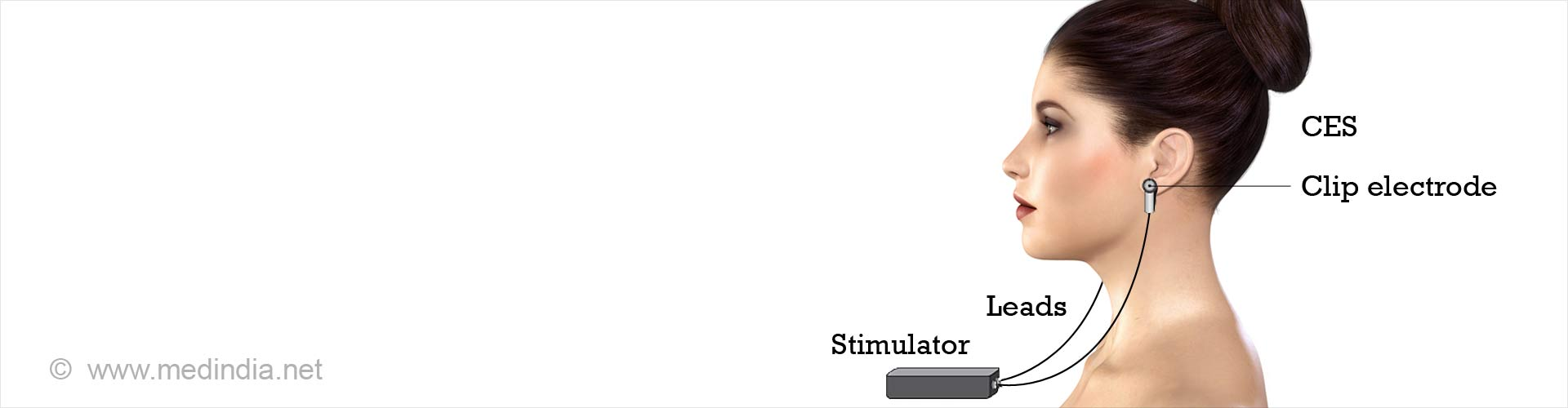 Cranial Electrotherapy Stimulation (CES)