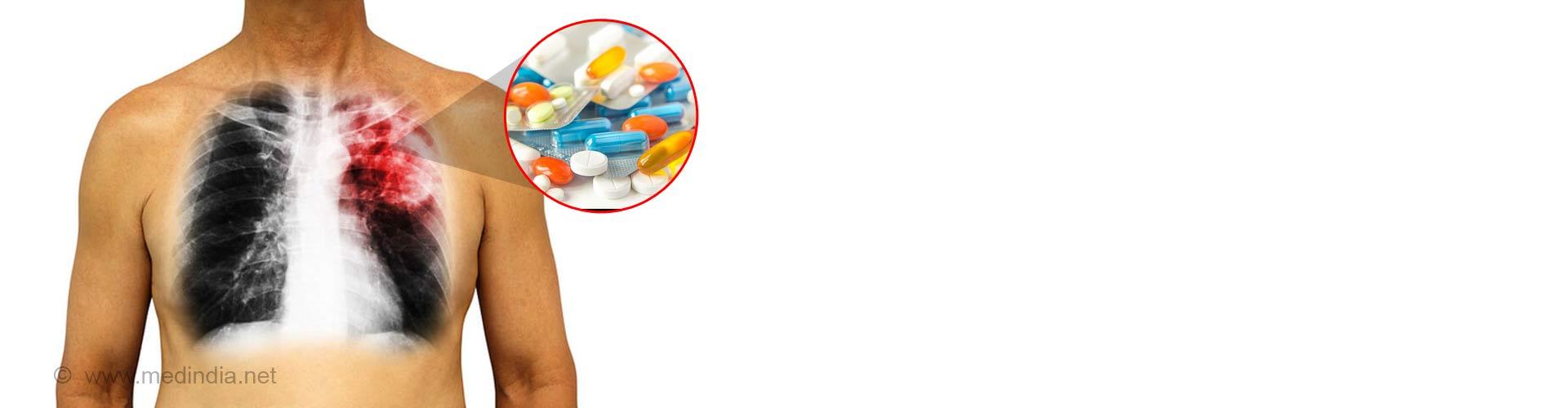 Drug-induced Pulmonary Diseases