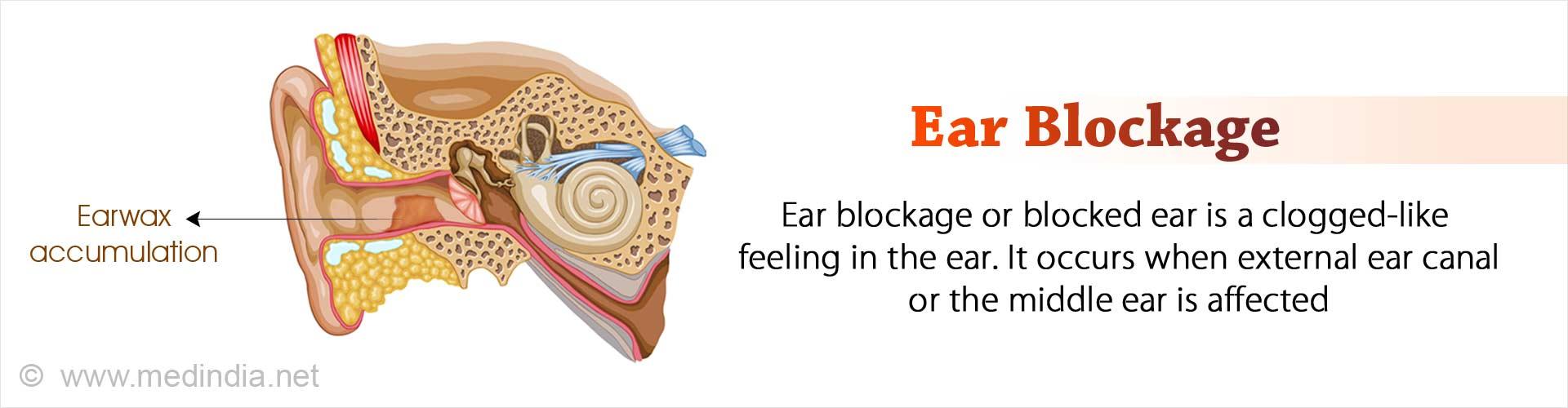 Ear Blockage / Wax Blockage