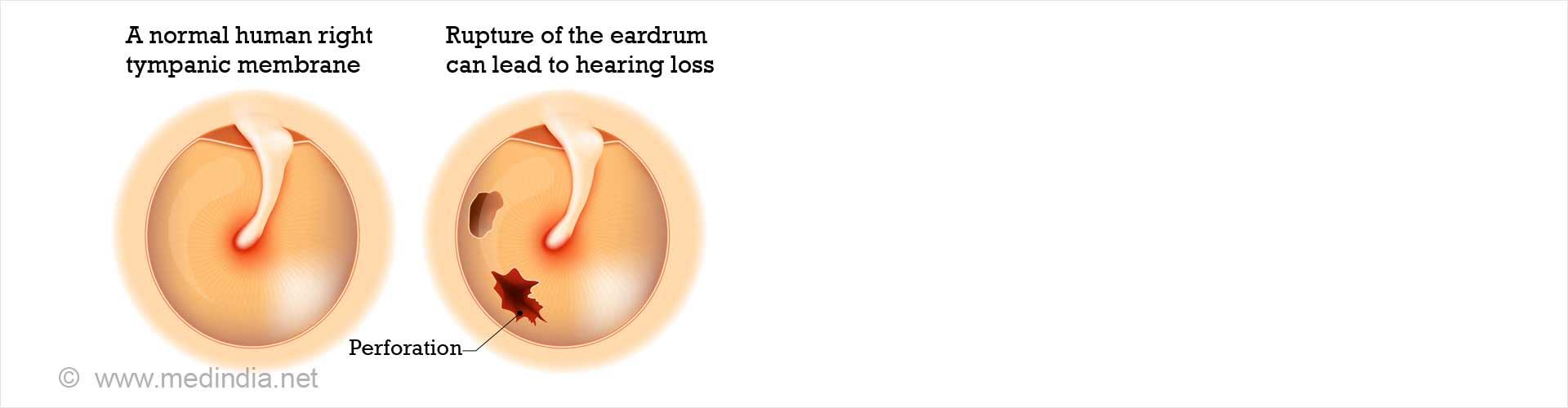 Eardrum Perforation