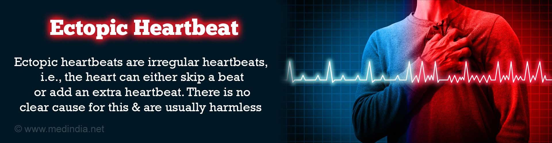 Ectopic Heartbeat