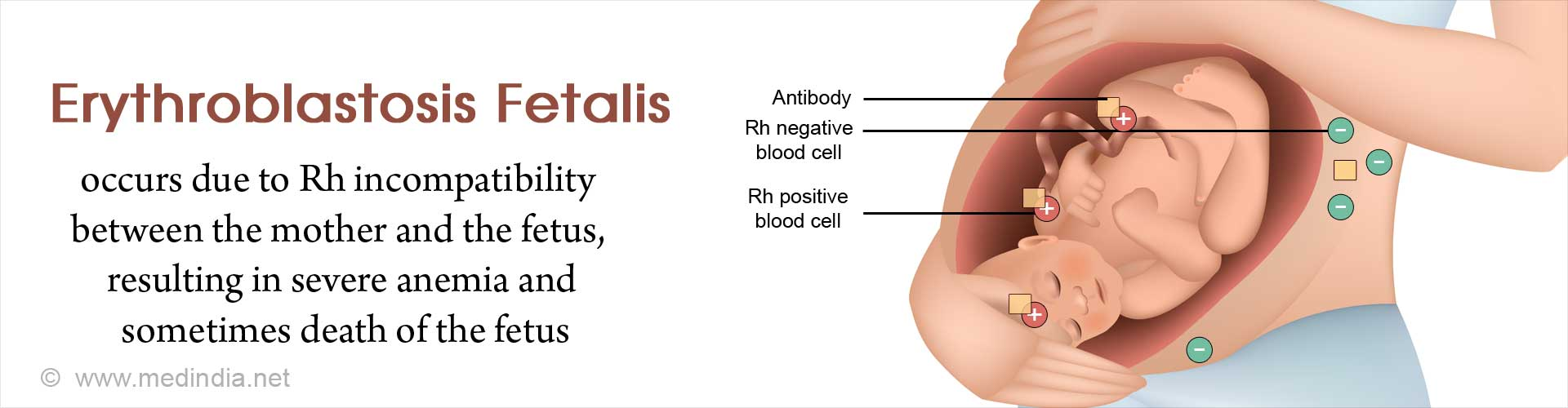 Erythroblastosis Fetalis