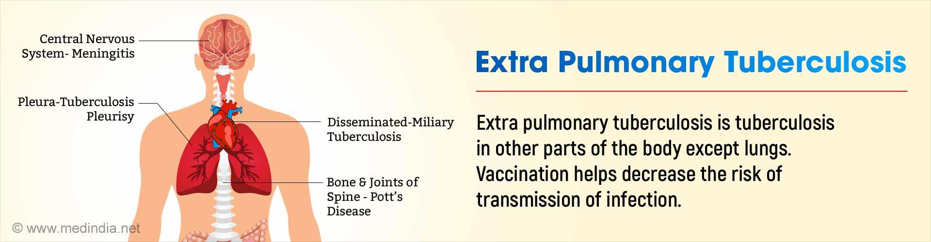 Extra Pulmonary Tuberculosis