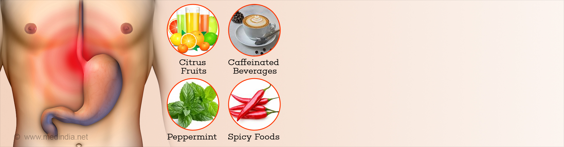 Foods to Avoid to Keep Acid Reflux At Bay