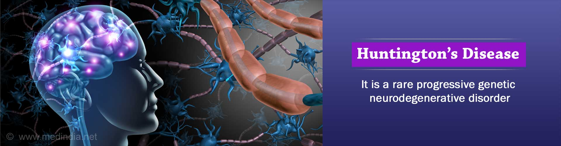 Huntington's Disease | Huntington's Chorea - Causes, Symptoms, Diagnosis, Treatment