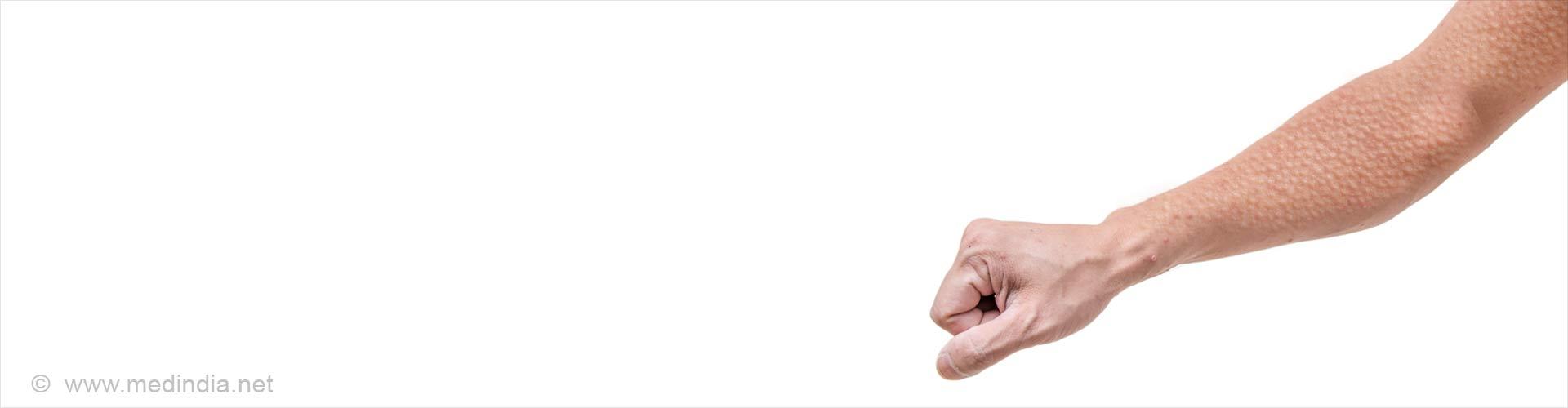Keratosis Pilaris (Chicken Skin) - Skin Disorder