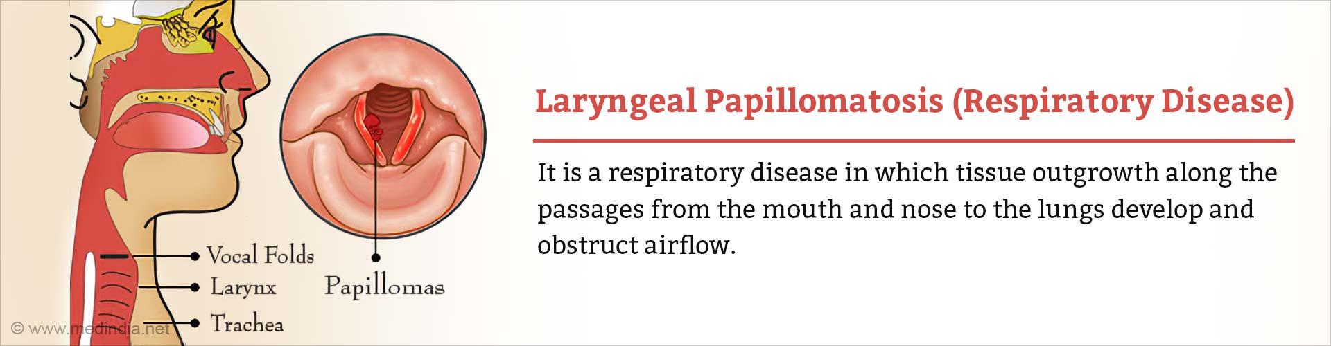 Laryngeal Papillomatosis
