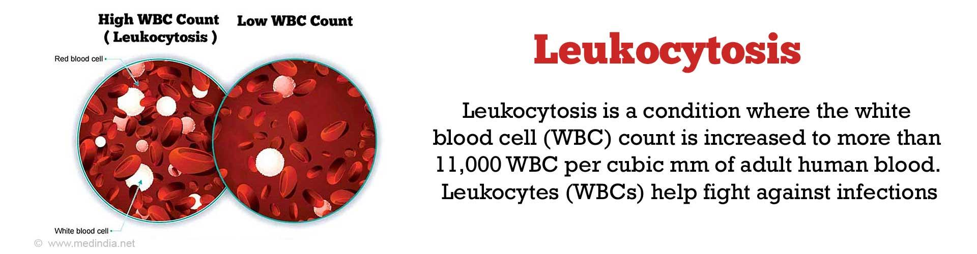 Leukocytosis