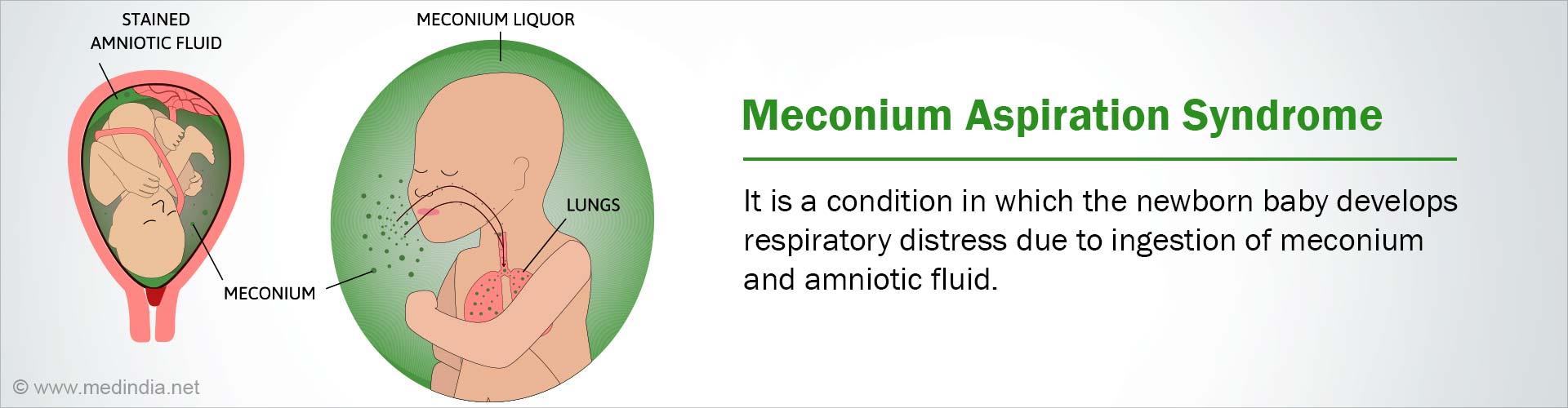 Meconium Aspiration Syndrome - Causes, Symptoms, Diagnosis, Complications, Treatment