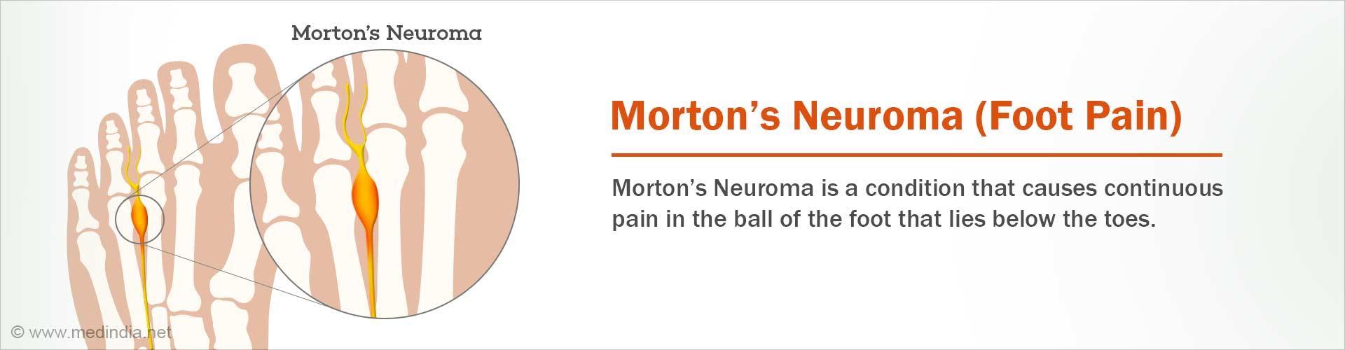 Morton's Neuroma - Causes, Symptoms, Diagnosis, Treatment, Prevention