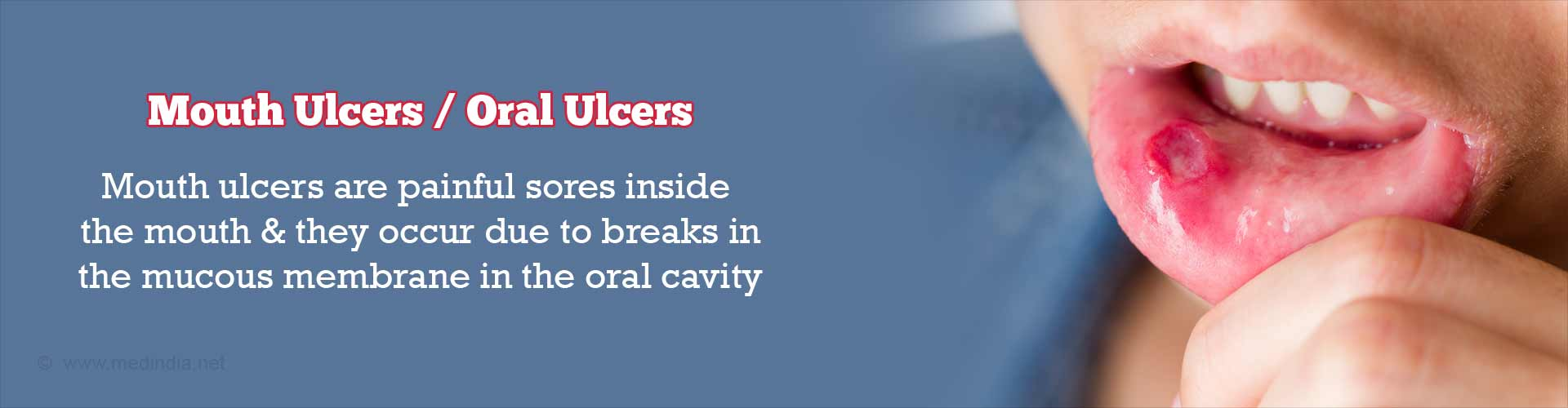 Mouth Ulcers / Oral Ulcers