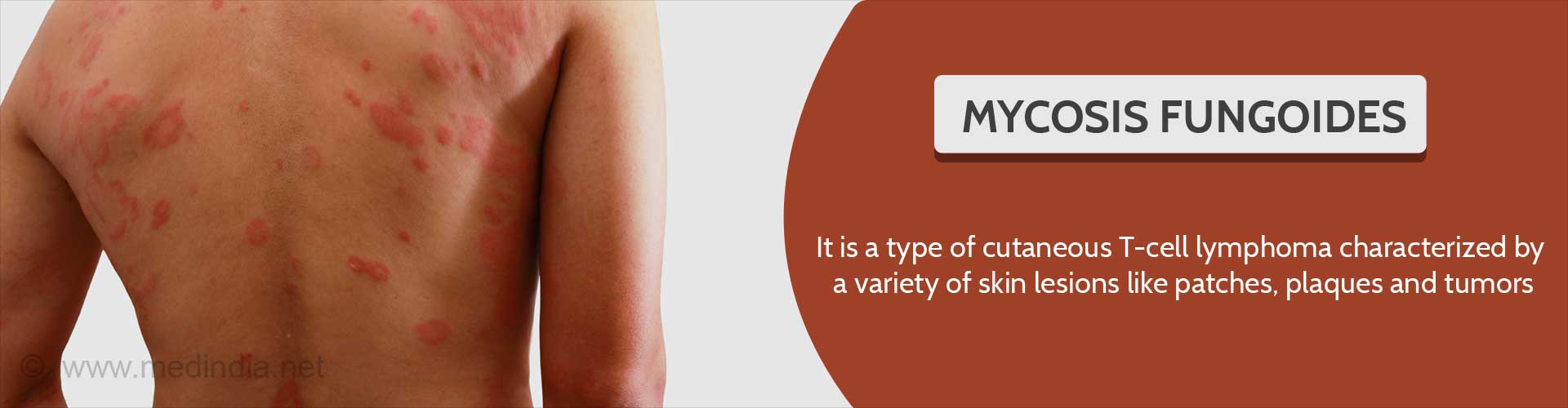 What is mycosis