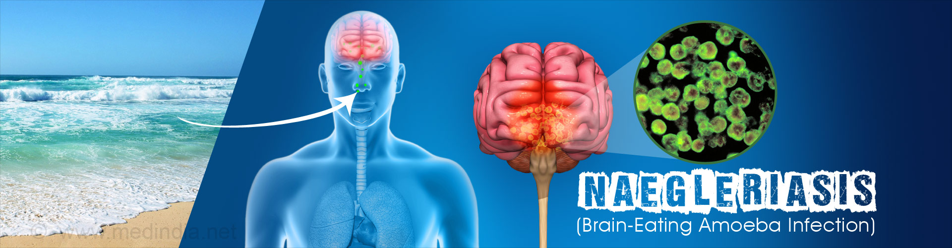 Naegleriasis (Brain-Eating Amoeba Infection) - Causes, Symptoms, Prevention
