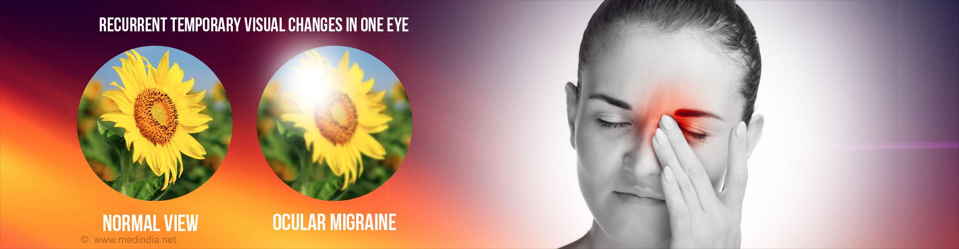 Retinal Migraine (Ocular Migraine)
