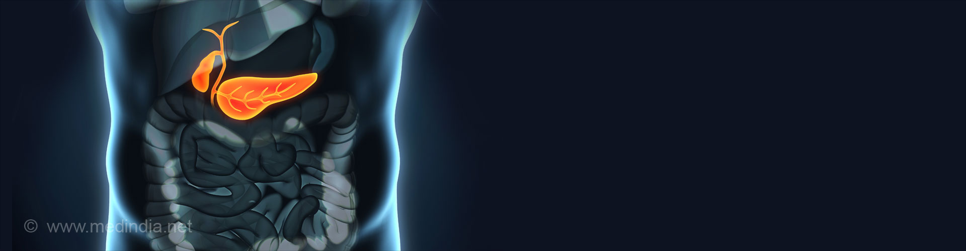 Type 3c (Pancreatogenic) Diabetes