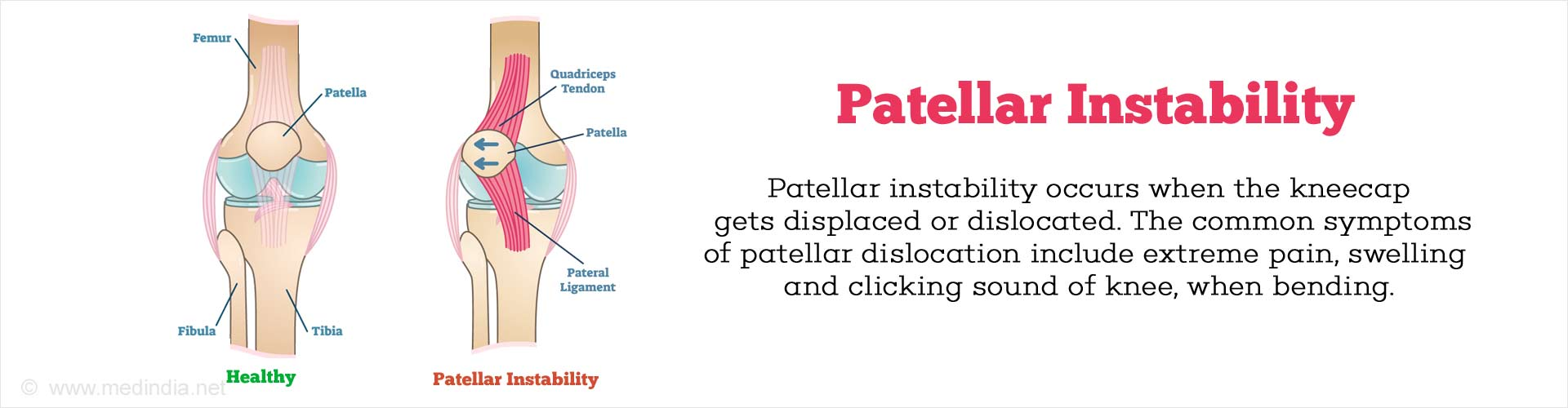 Patellar Instability