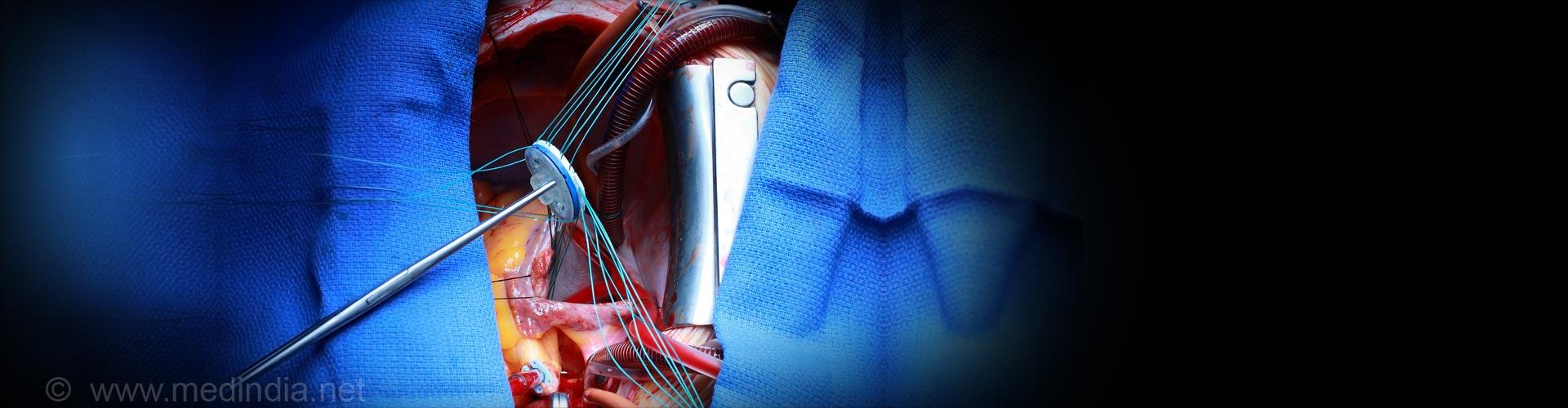 Prosthetic Heart Valves