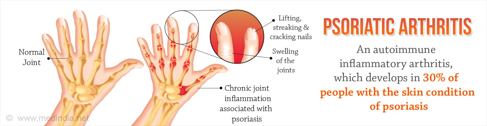 Psoriatic Arthritis Treatment