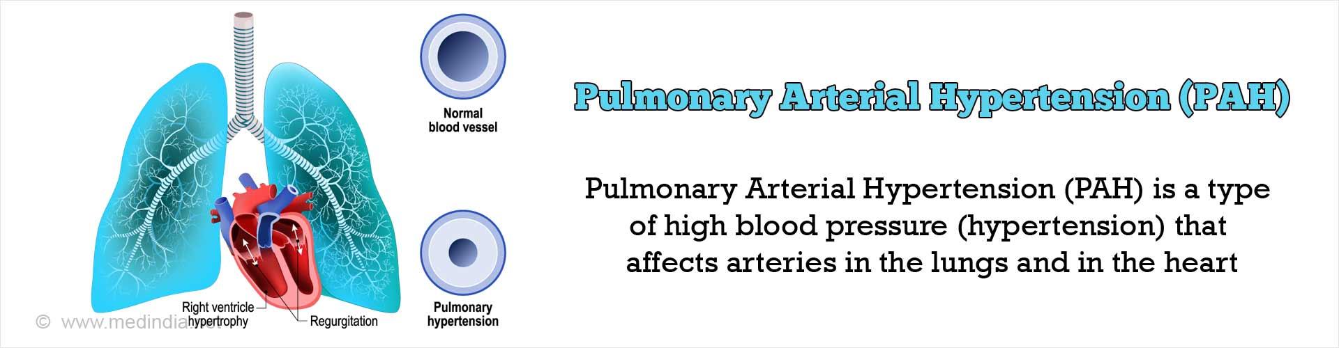 Pulmonary Arterial Hypertension [PAH] - Symptoms & Signs - Causes - Diagnosis -