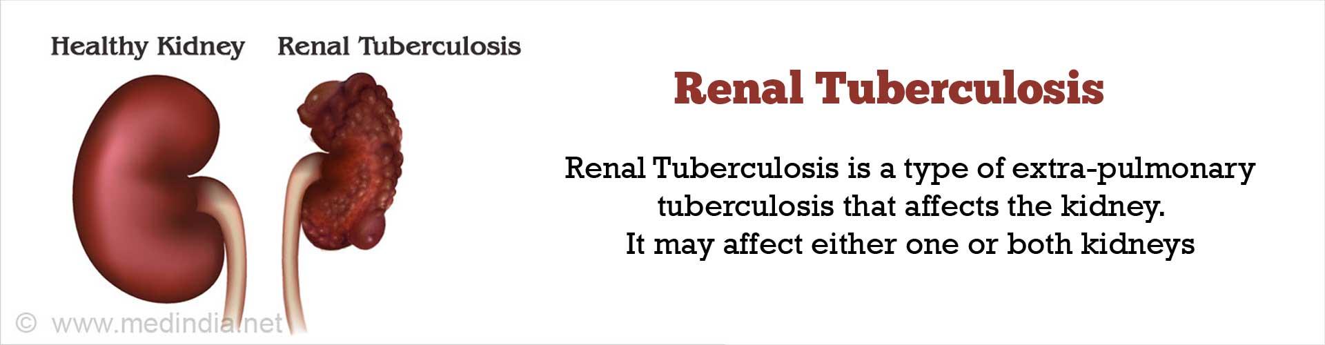 Renal Tuberculosis