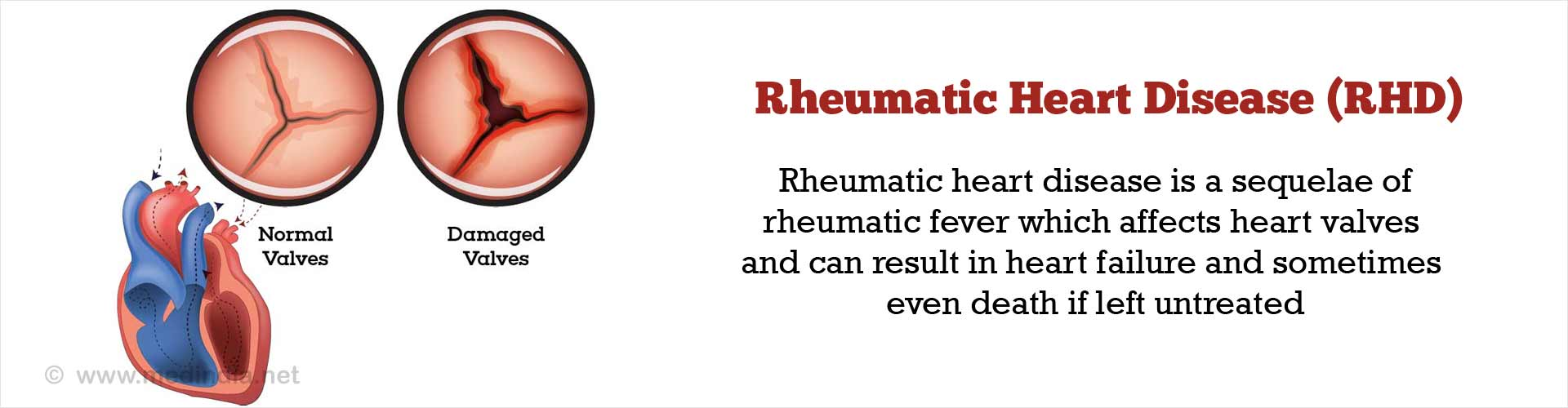 Rheumatic Heart Disease (RHD)