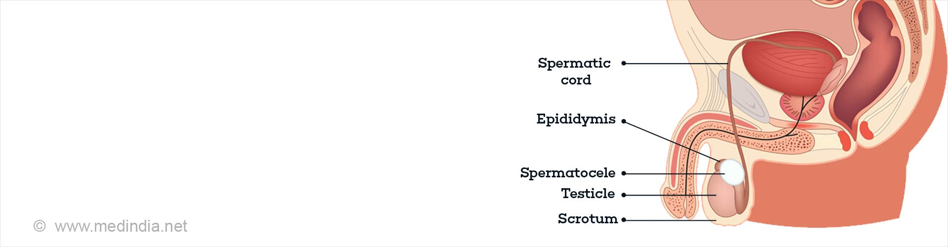Spermatocele