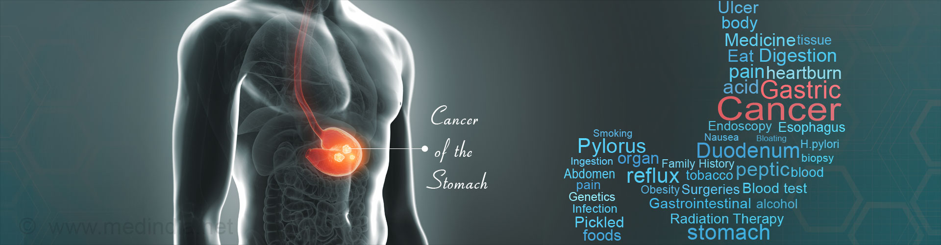 Gastric Cancer / Cancer Of The Stomach