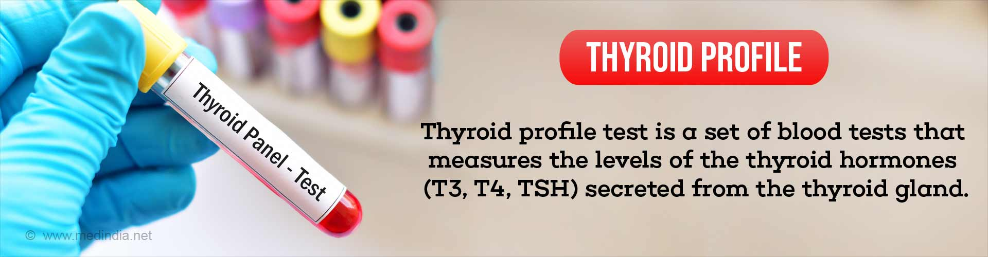 When to do a Thyroid Peofile Test?