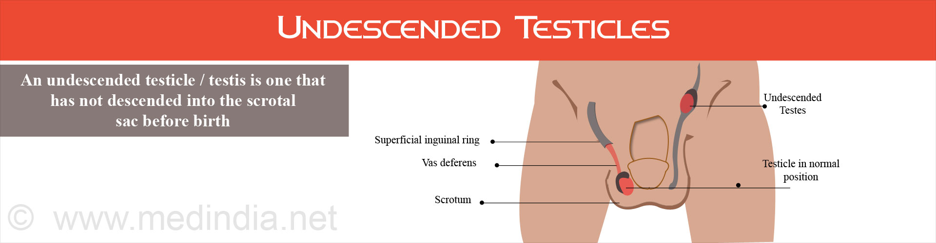 Undescended Testicles (Cryptorchidism)