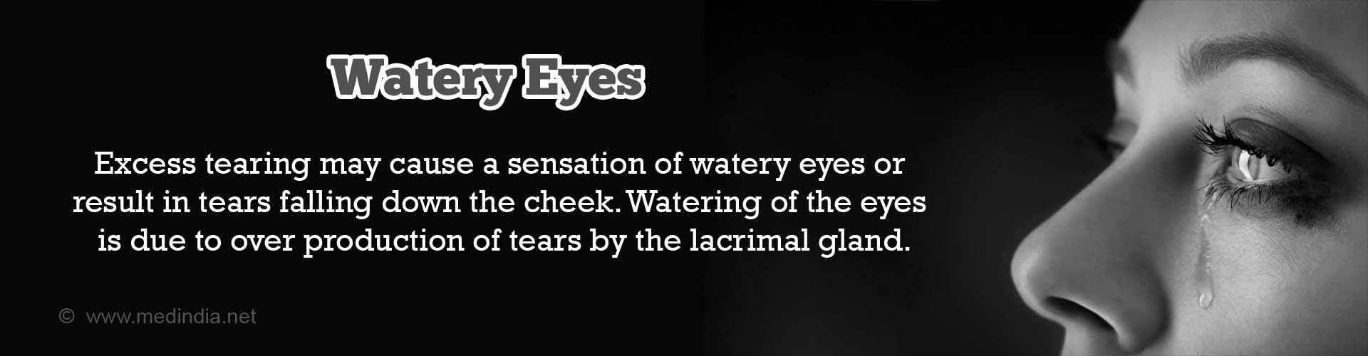 Watery Eyes