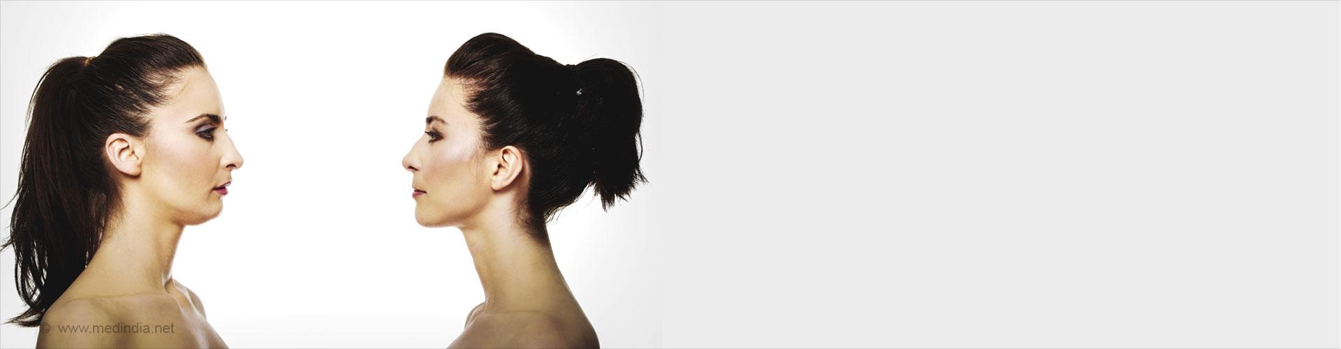 Top 5 Ways to Get Rid of Facial Fat