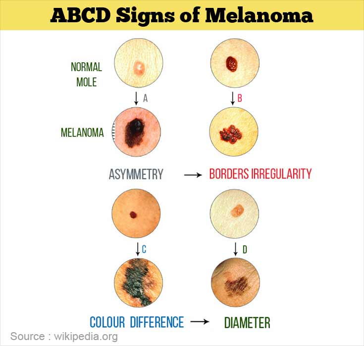 ABCDE Signs of Melanoma