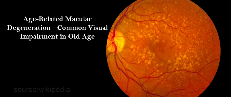 Age-Related Macular Degeneration - Common Visual Impairment in Old Age