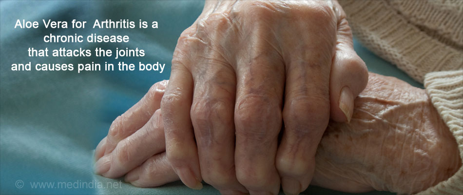 Health Benefits of Aloe Vera: Arthritis
