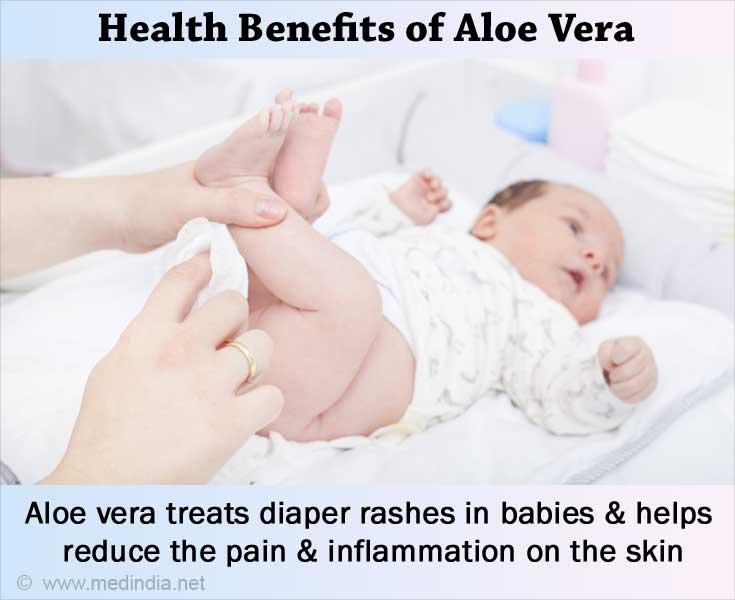 Health Benefits of Aloe Vera: Diaper Rashes
