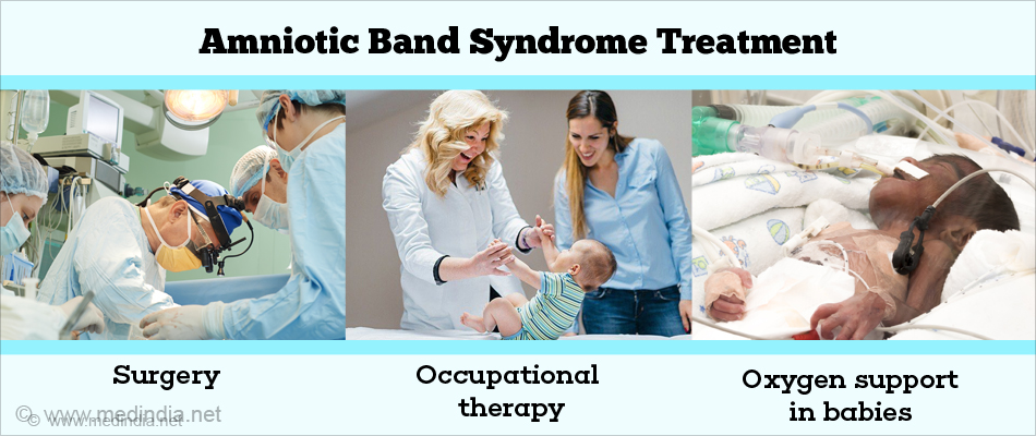 Amniotic Band Syndrome Treatment