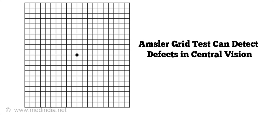 Amsler Grid Test Can Detect Defects in Central Vision
