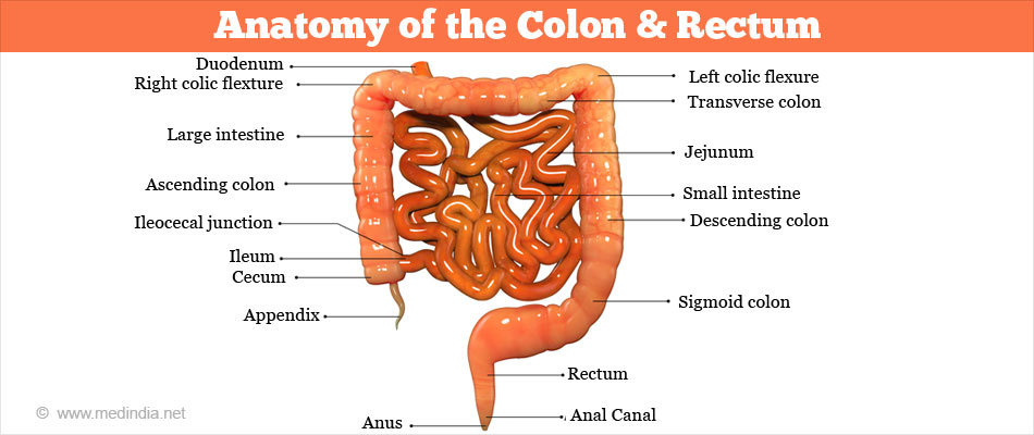 Colorectal Cancer - Types, Causes, Risk Factors, Symptoms, Diagnosis ...