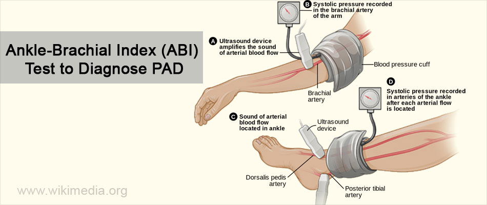 Ankle-Brachial Index (ABI) Test to Diagnose PAD